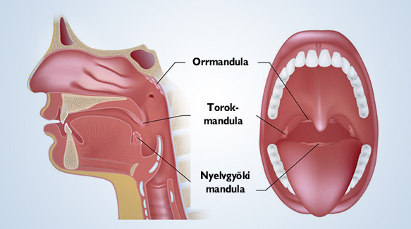 mandulagyulladás ízületi fájdalom ízületeket tápláló artrózisos gyógyszerek
