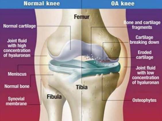 Étel a térd osteoarthritisére