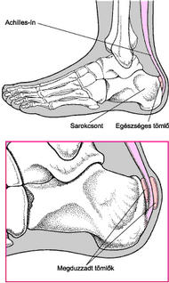 akut fájdalom a lábak ízületeiben, mit kell tenni)