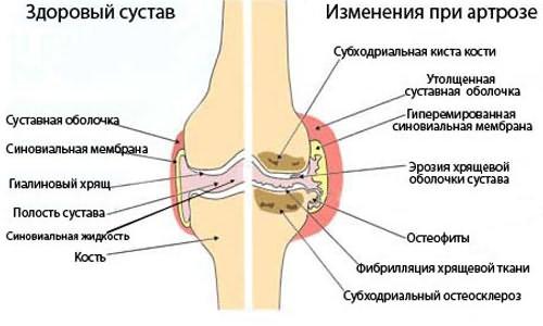 a lábak falának ízületei deformáló artrózisa)