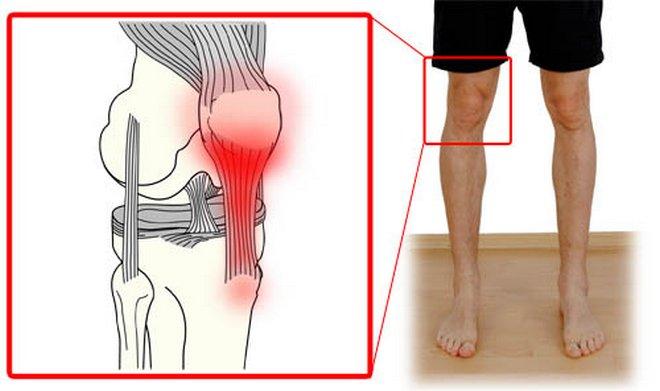 a térdízület kezelés kezdeti stádiumú artrózisa)