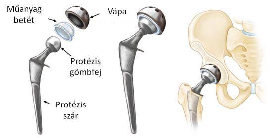 artrózis és ízületi gyulladás kezelése oroszországban
