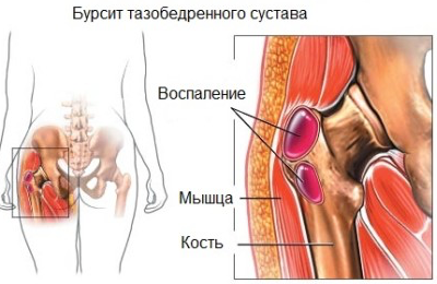 fájdalom a csípőízületben az ágyék területén)
