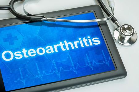 az interfalangeális ízületek arthroso arthritis a könyök porca fáj