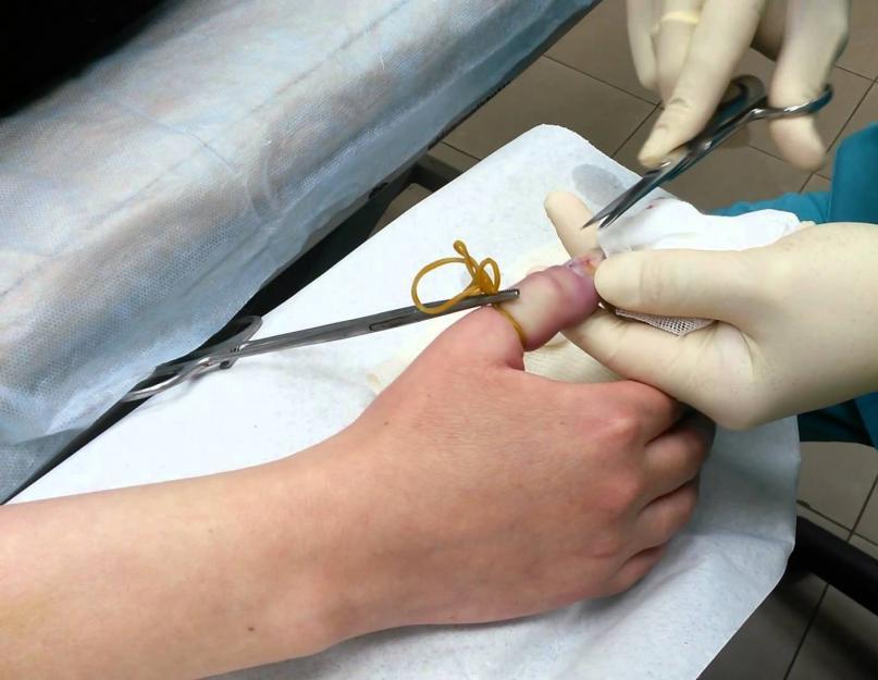 artrózis kezelése homoktövis olajjal