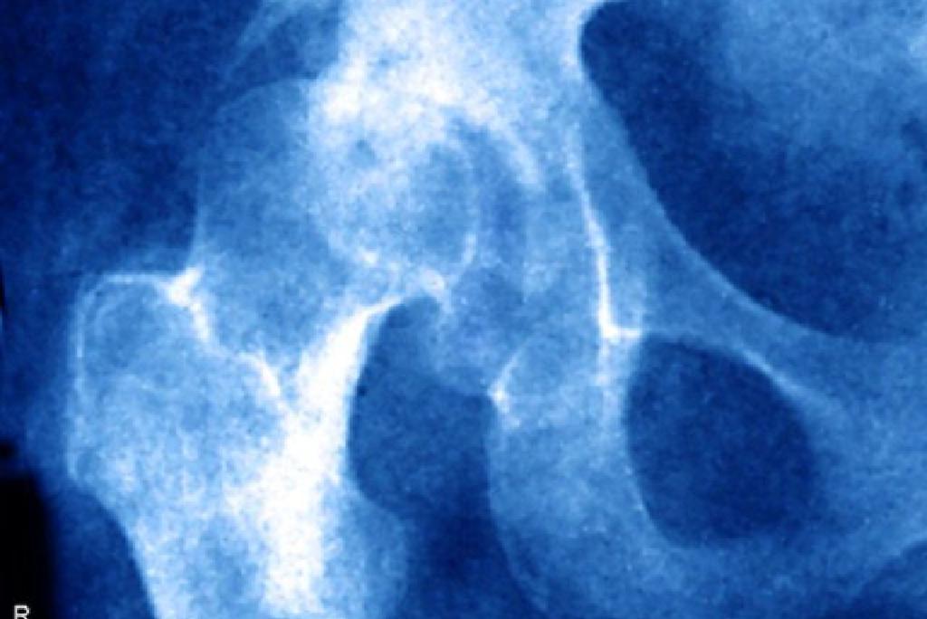 fáj és nem hajlítja meg a térdét együttes kezelés ozokerittel