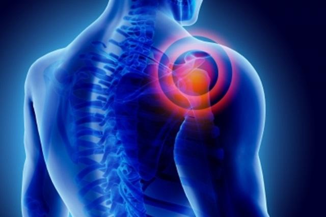 váll fájdalom röntgen kezelés)