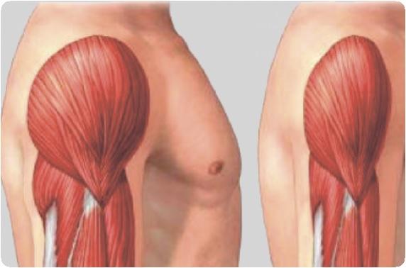 térd atrofikus ízületi gyulladása