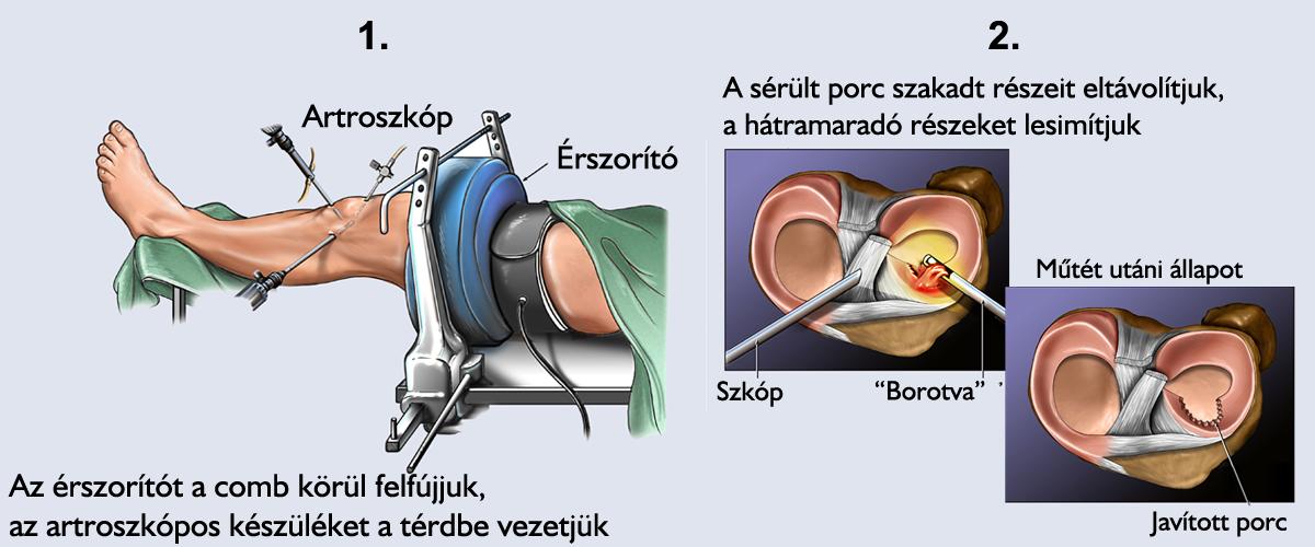 a térd 1. fokú artrózisának kezelése