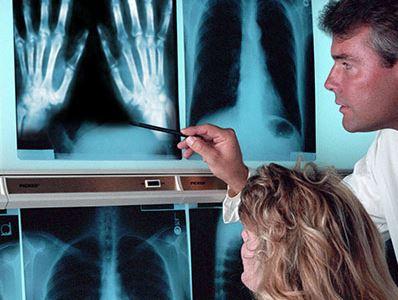 ízületi fájdalom toxoplazmózissal csontritkulás milyen gyógyszereket kell venni