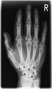 csukló artrózis