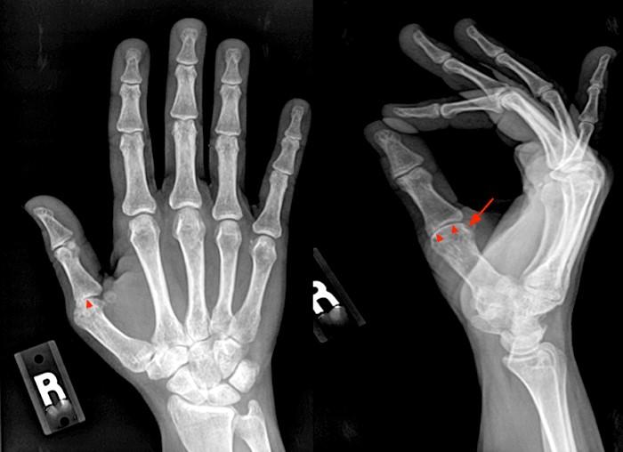 rheumatoid arthritis radiology stages)