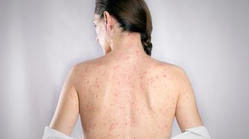 A fertőzéses eredetű ízületi gyulladásról