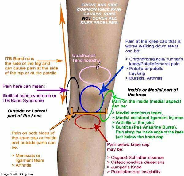 csípő-sprain otthoni kezelés