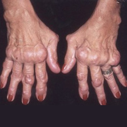 artrózis kezelése réz-szulfáttal