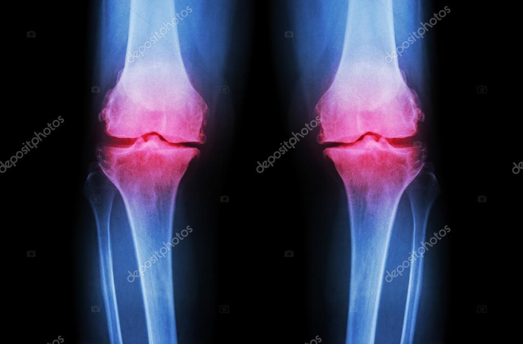 térd kenőcső osteoarthrosis