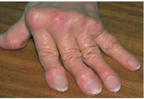 kötőszöveti és ízületi betegségek