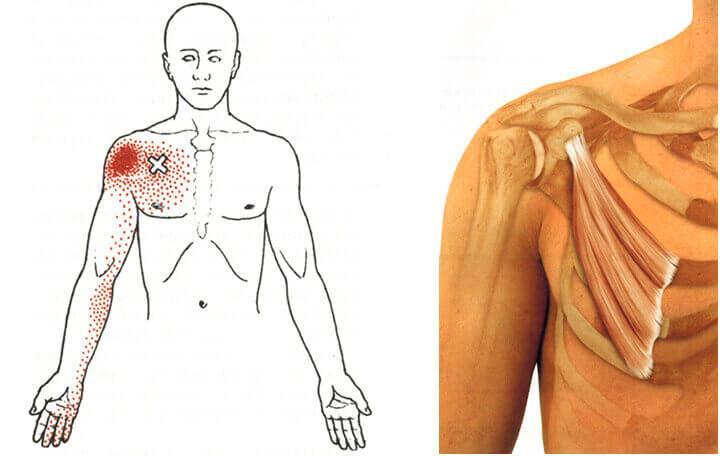 hatékony gyógyszer a nyaki gerinc csontritkulása ellen)