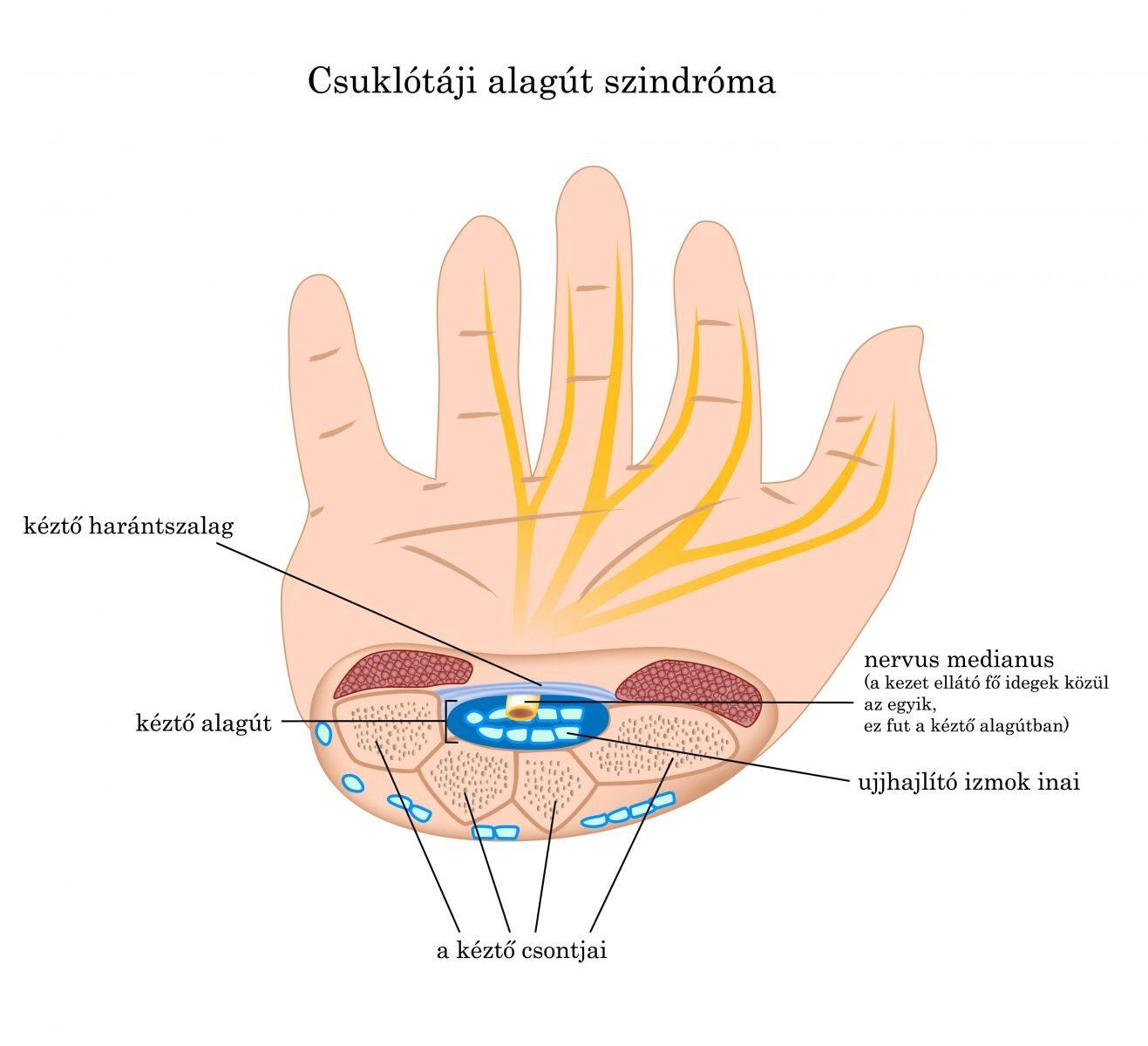 akkor felszárnyalhatja a kezét ízületi gyulladással