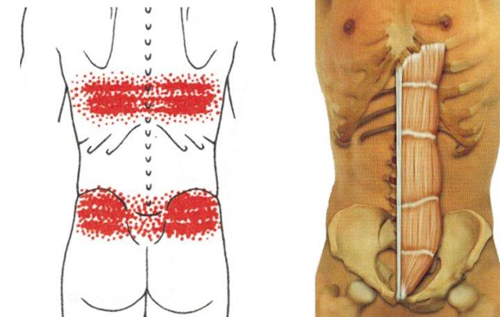 a hát alsó része fáj, az összes ízület izületi fájdalom multiplex