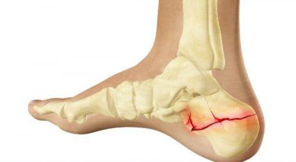 Gyakorló terápia boka törése után: önmasszázs, lábfej, kötés és étrend
