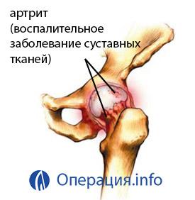 a csípőízület artrózisa 3 fokos fogyatékossággal járó kezelés)