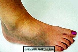 boka sérülés törés tünetei fájdalom a láb ízületeiben törés után