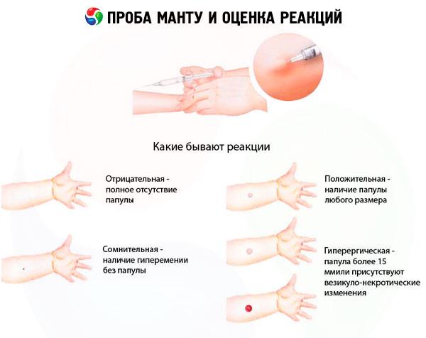 OTSZ Online - Reumás ízületi gyulladás