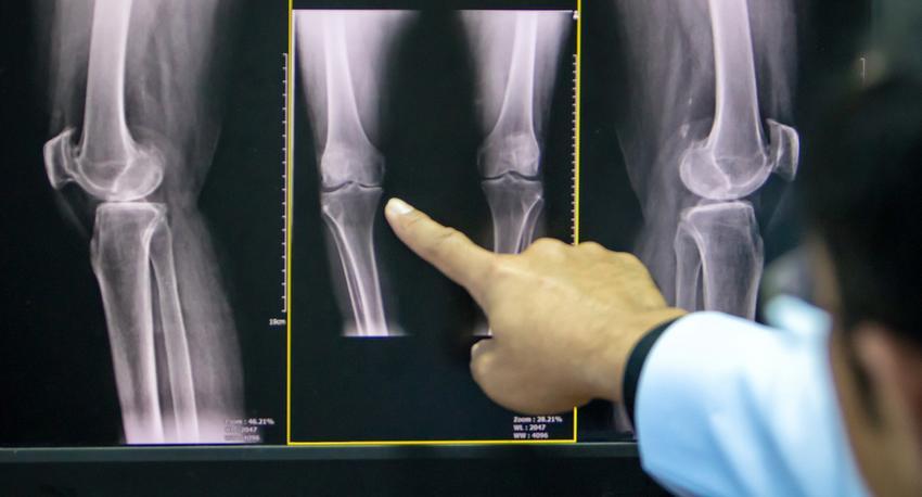 térd és csípő artrózisa)