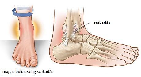 fájdalom a lábban és a bokában