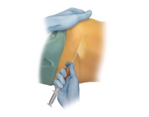 artrózisos kezelési érzéstelenítés