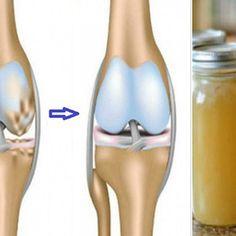 arthrosis kezelés a keleti orvoslásban emu krém ízületekről