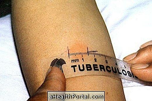 mantoux ízületi fájdalom teszt