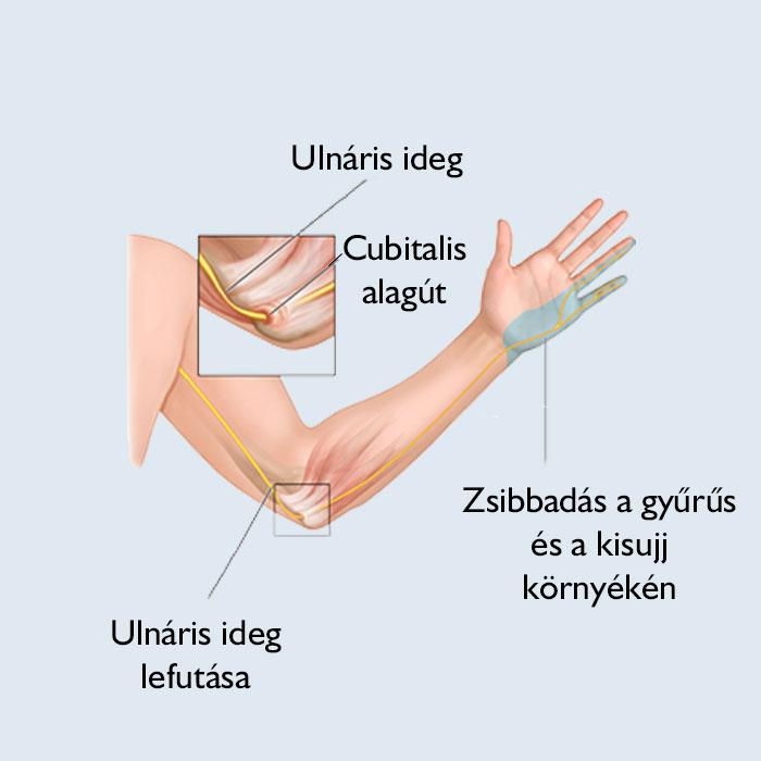 a végtag és a könyökízület csontjainak sérülései