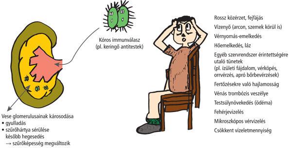 A vesebetegség 14 tünete, mely felismerése életet menthet - fájdalomportádemonstudio.hu