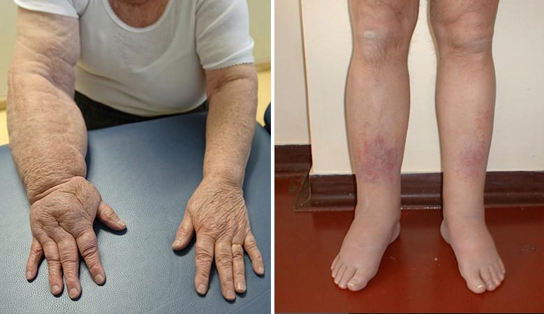 a láb artrózisát kezeljük