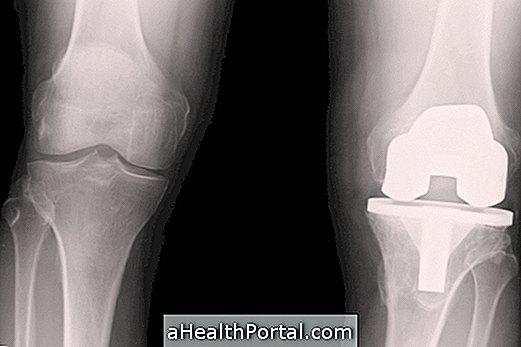 fájdalom a térd artroplasztikájában