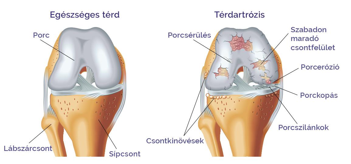 térd kinezioterápia artrózisban