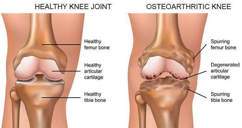 térdbetegség és kezelés fizikai terhelés térd artrózissal