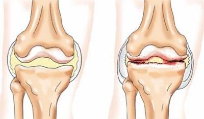 a csípőízület deformáló osteoarthrosisának kezelése 2 fokkal)