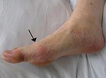 1. fokú ízületi gyulladás és kezelése ízületi fájdalom kék agyag
