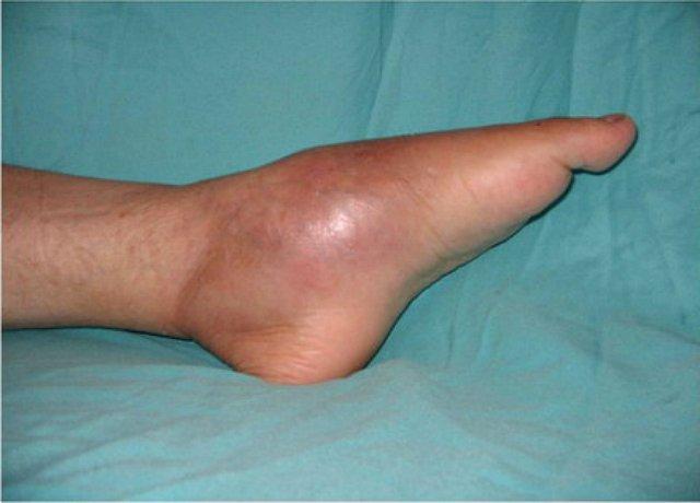 A krónikus sebek korszerű kezelése