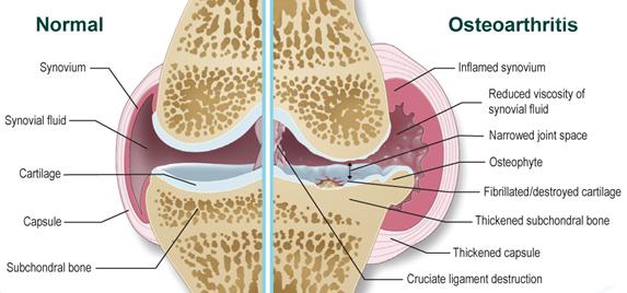 arthrosis vagy osteoarthritis kezelés
