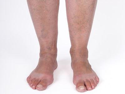 a bokáig fájdalom nélkül gyógyszer a gerinc porcának helyreállításához