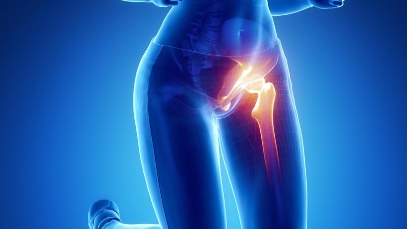 csípőízületek coxarthrosis hogyan kezelhető