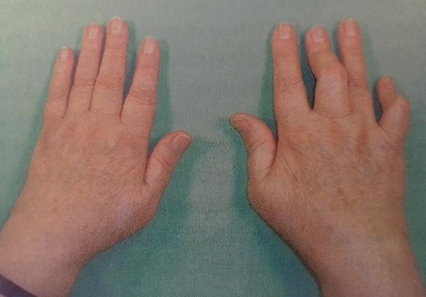 a kéz interfalangeális ízületi gyulladása