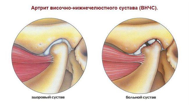 a legjobb gyógyszer a térd artrózisához térdízület ízületi gyulladásos tünetei