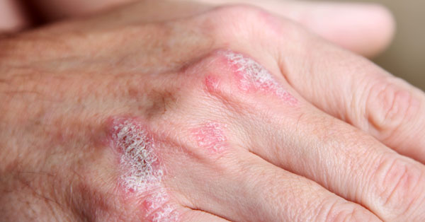 hogyan lehet kezelni a lábak psoriasis ízületi gyulladását)