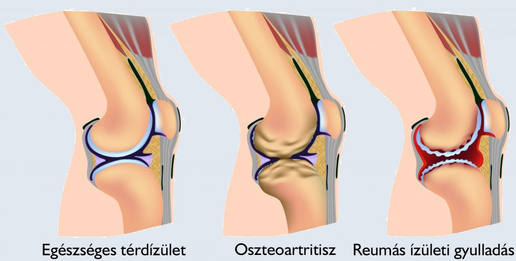 lábfájdalom térdízület