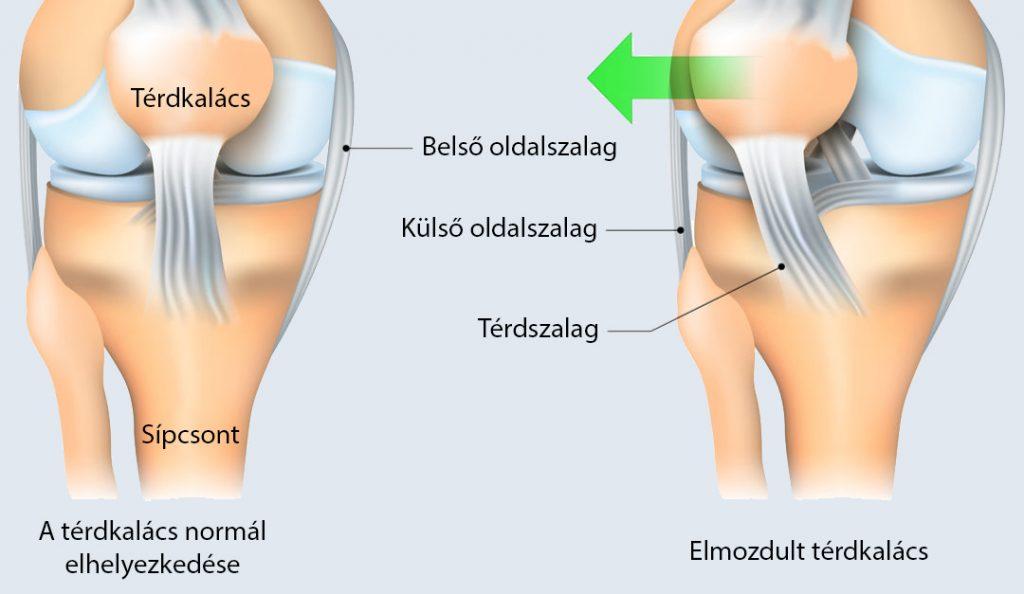 a térd oldalsó ízületeinek károsodásának tünetei